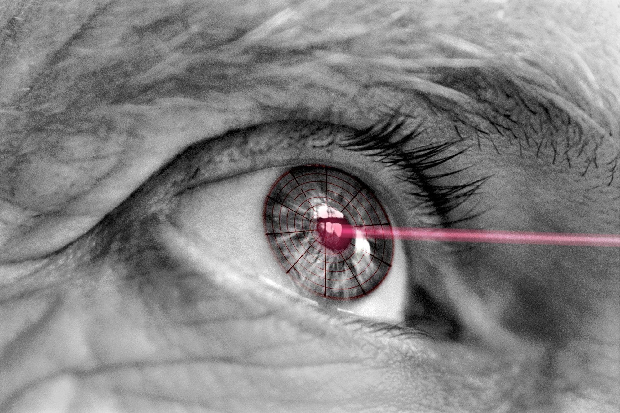 síntomas glaucoma