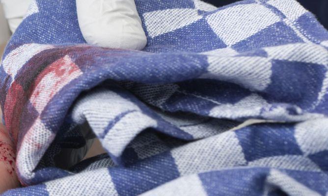 últimos lanzamientos mejor online nueva apariencia Limpiar manchas de sangre de la ropa - Hogarmania