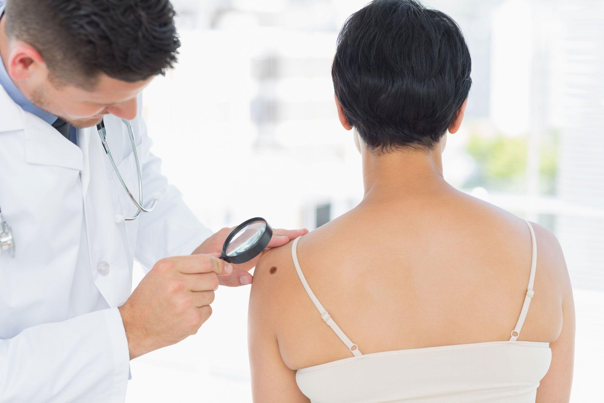 dermatólogo