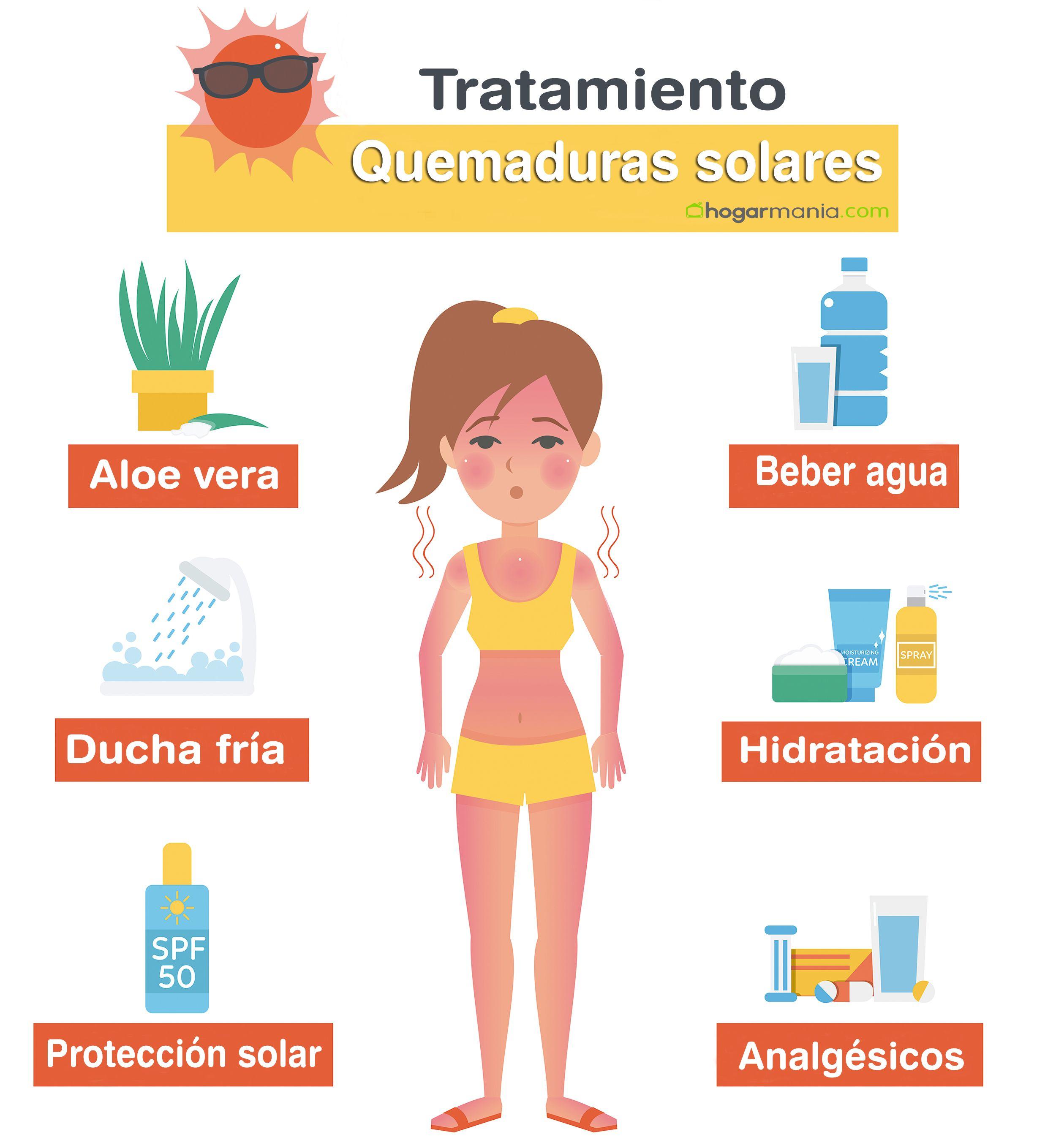 infografía tratamiento quemaduras sol