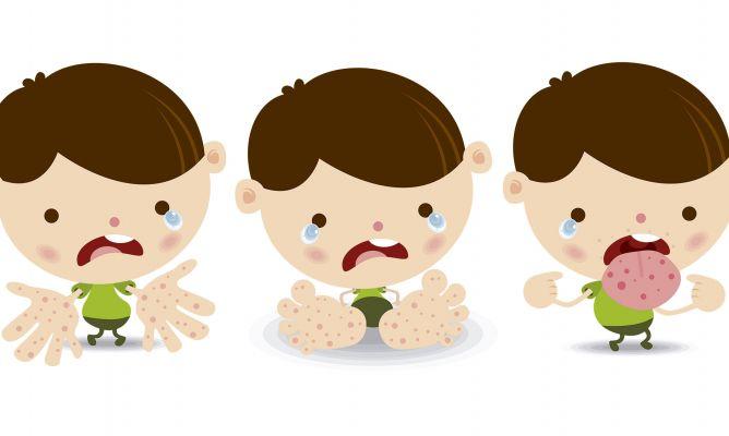Enfermedad de manos pies y boca en bebes