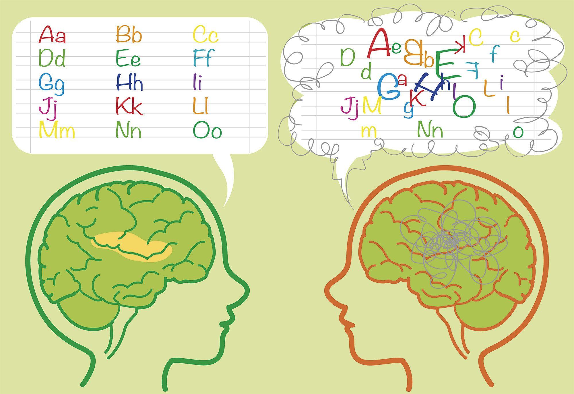 problemas aprendizaje dislexia