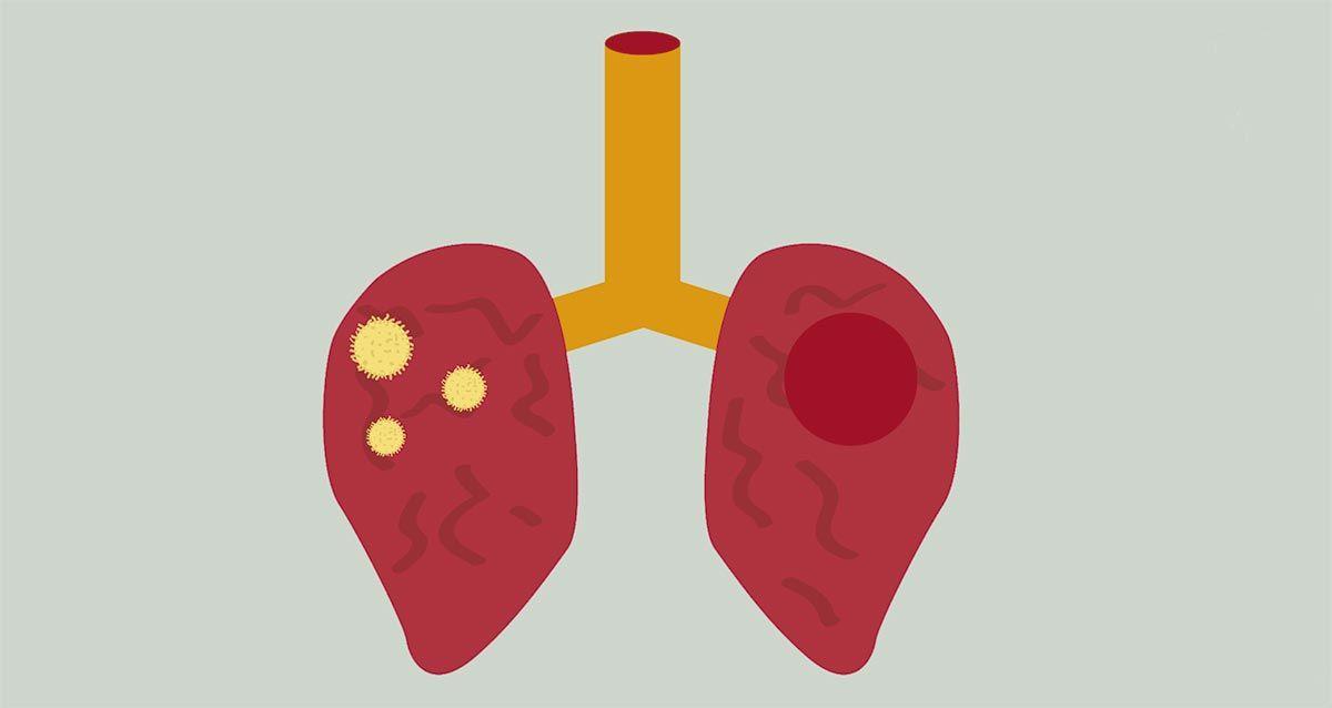 tuberculosis - qué es