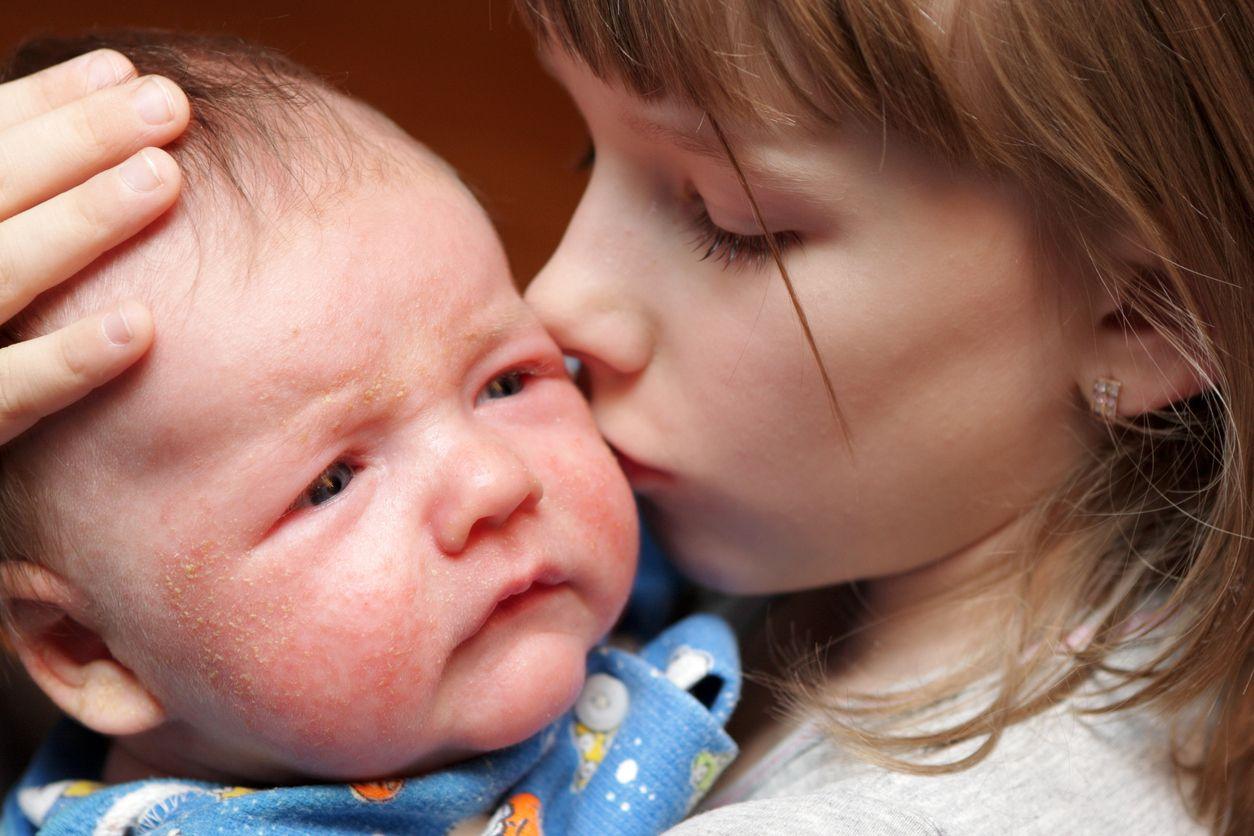 Sarpullidos o exantemas y petaquias en bebés y niños