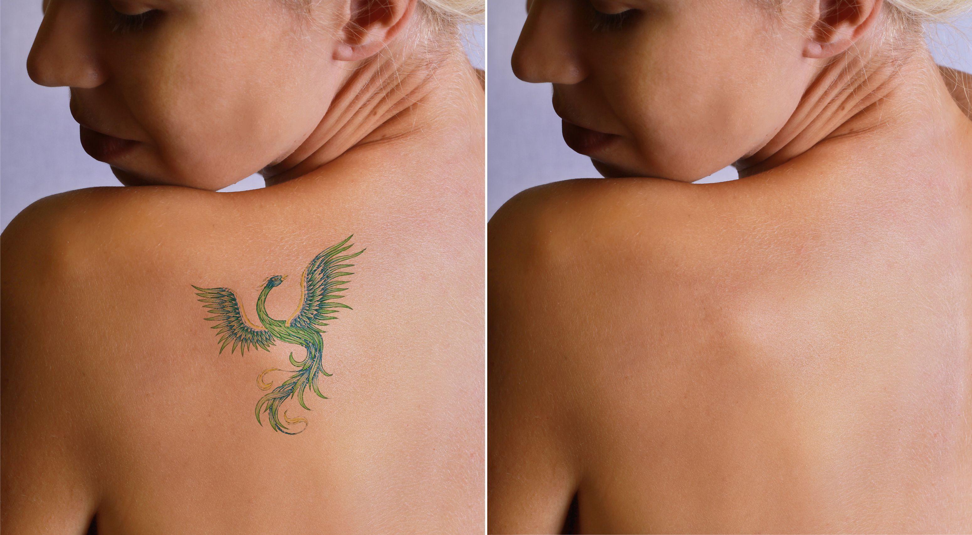 Como Borrar Un Tatuaje cómo eliminar un tatuaje - hogarmania