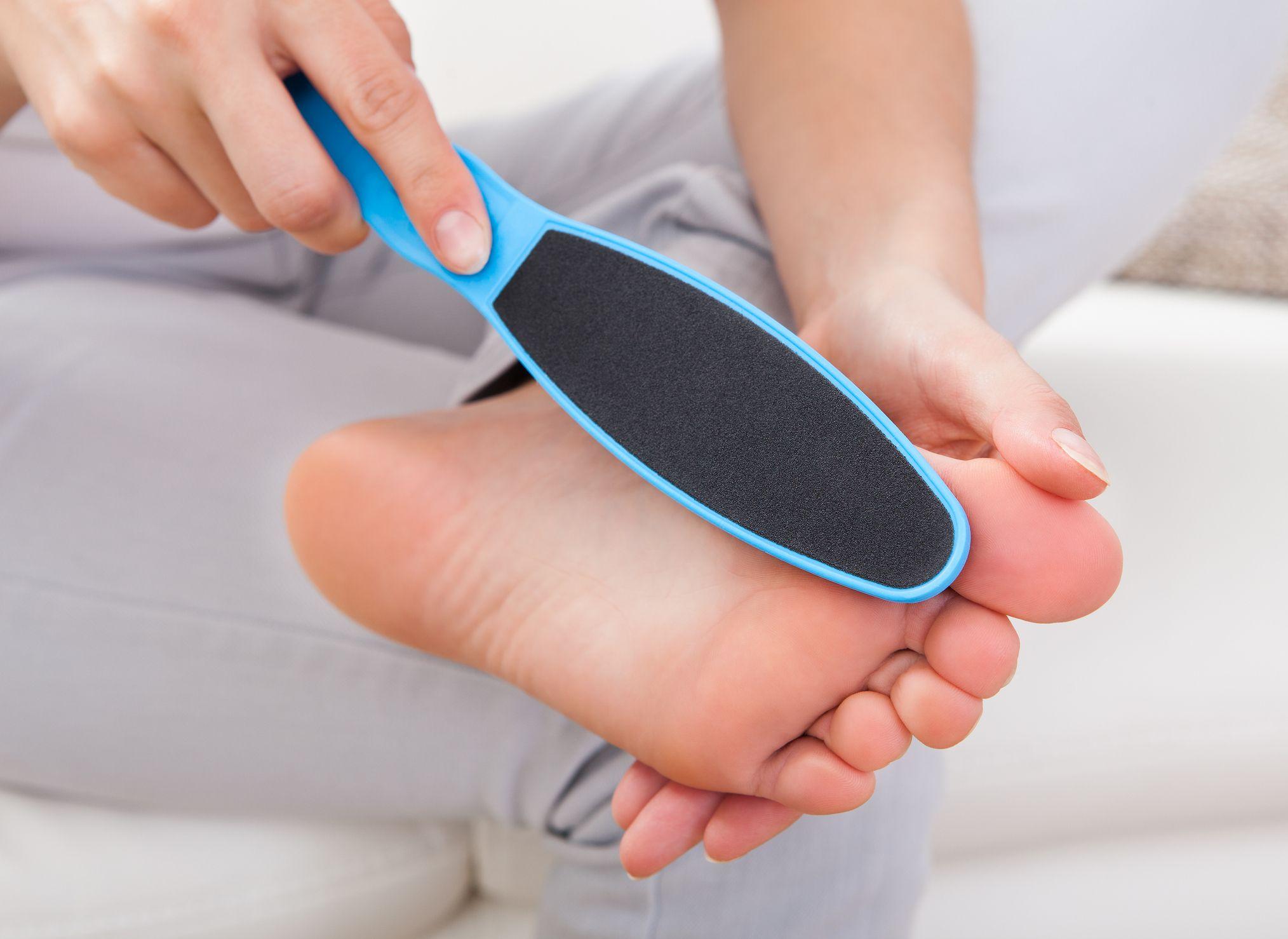 Existen utensilios y tratamientos específicos como apósitos, limas manuales o eléctricas y piedras pómez para eliminar callos y durezas.