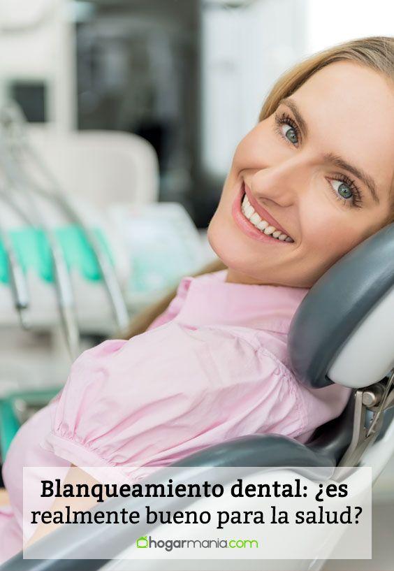 Blanqueamiento dental: ¿es realmente bueno para la salud?