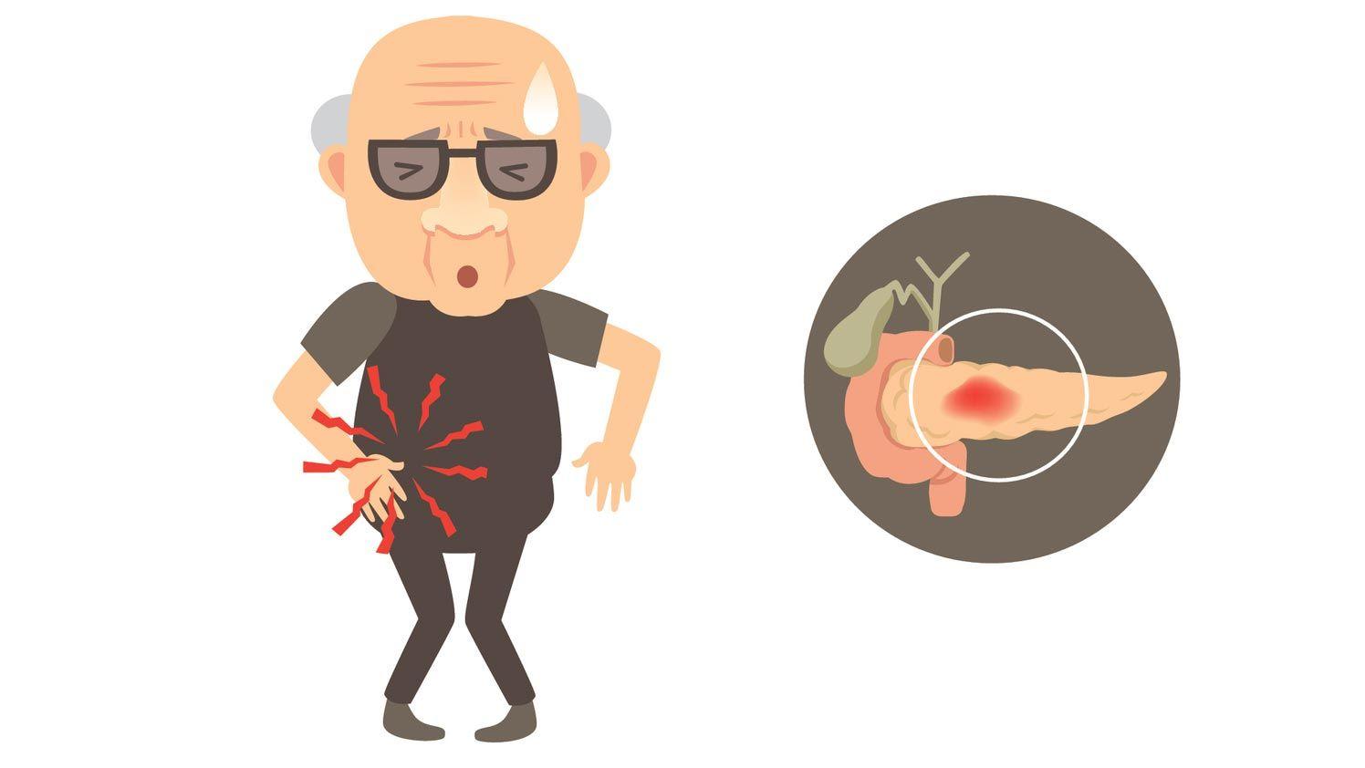 factores riesgo pancreas