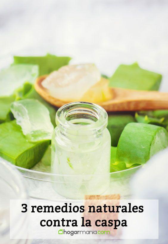 3 remedios naturales contra la caspa