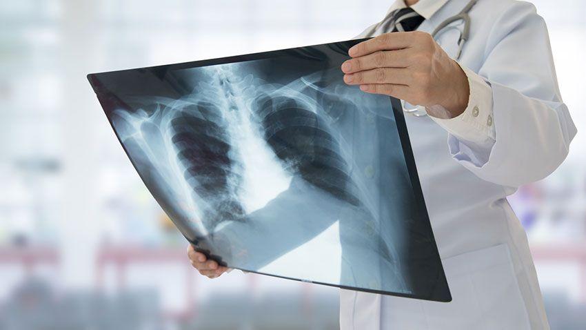 Médico observando radiografía pulmonar