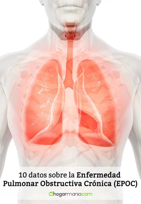 10 datos sobre Enfermedad Pulmonar Obstructiva Crónica (EPOC)