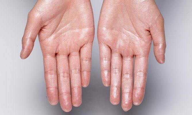 ¿Por qué sudan las manos?