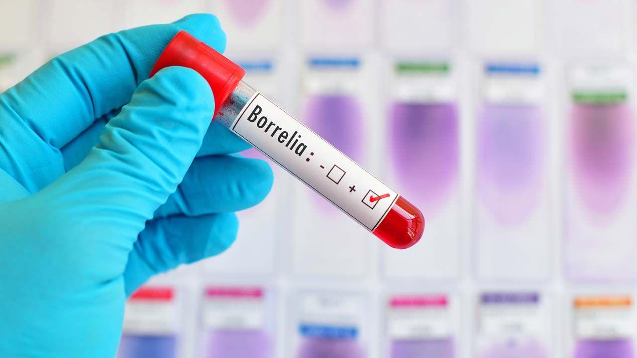 Test de borrelia