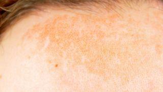 Manchas solares de la piel: Tratamiento