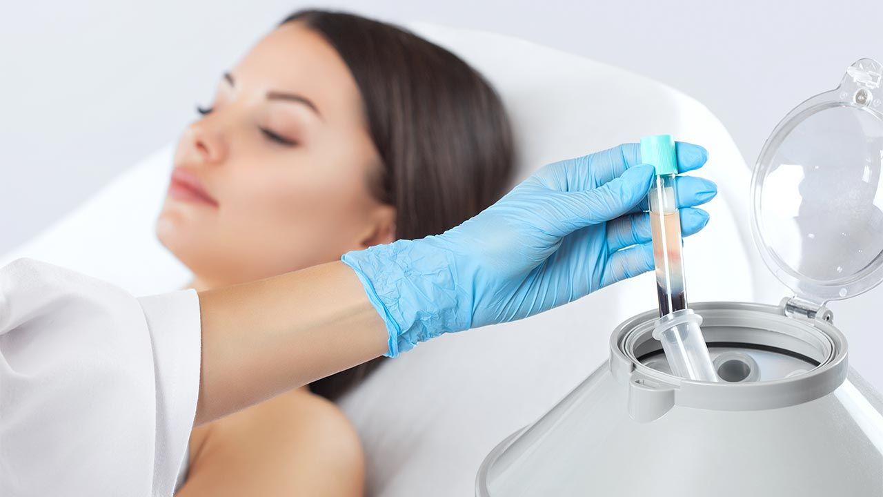 Tratamiento con plasma rico en plaquetas para cabello - máquina centrifugadora de sangre