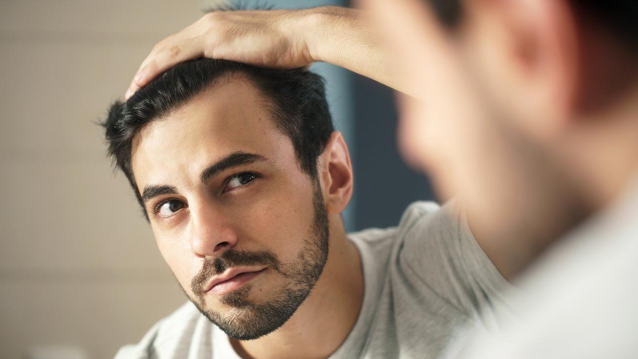 5 preguntas y respuestas sobre el injerto capilar - Alopecia