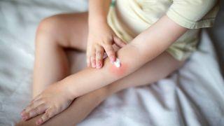 Cómo evitar los sabañones en invierno - Aplicar crema hidratante