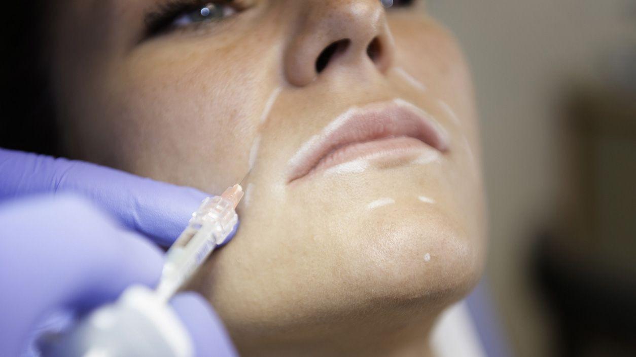 Ácido hialurónico para las arrugas y líneas de expresión