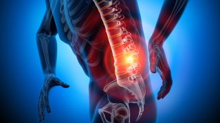 Lumbalgia: qué es y cómo tratarla - Causa de origen inflamatorio