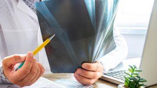Osteoporosis: qué es y qué factores influyen - Otros factores (fractura fémur)