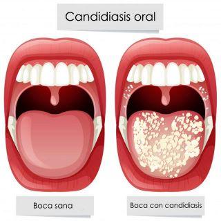 ¿Cuáles son los síntomas de la candidiasis? - Candidiasis oral
