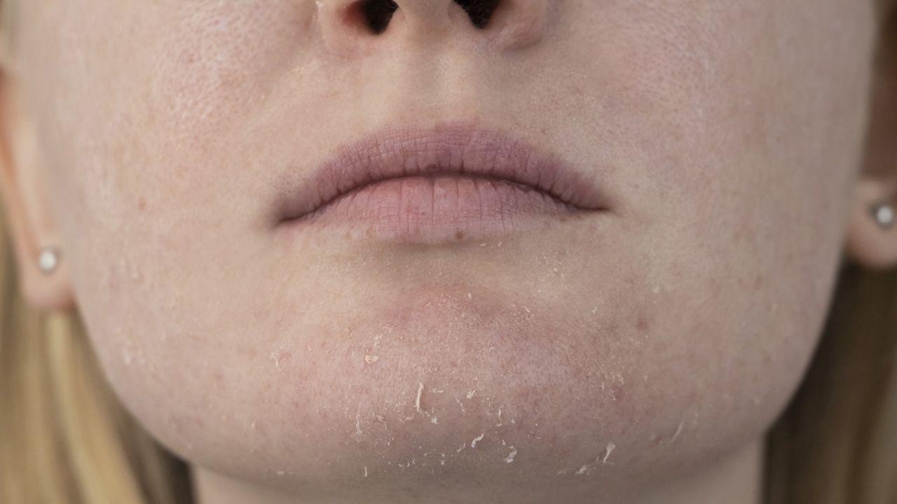 Tipos de piel: piel seca