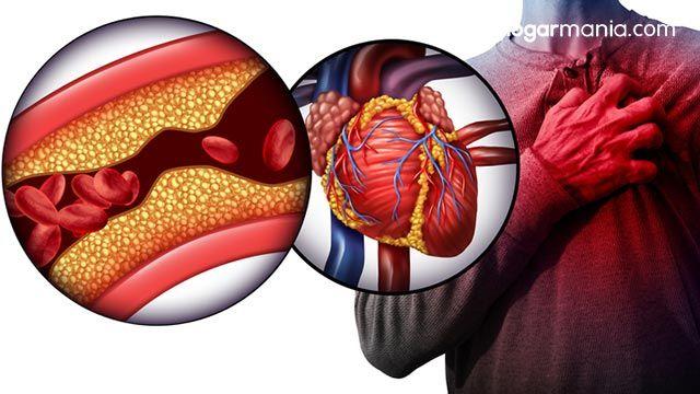 ¿Qué brazo duele cuando te va a dar un infarto? - Obstrucción de una arteria