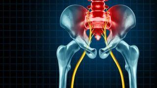 ¿Cuáles son los síntomas de la ciática? - Nervio ciático