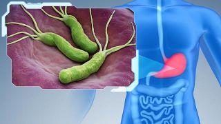 ¿Cuáles son los síntomas de la infección por Helicobacter pylori?