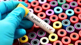 ¿Cuáles son los síntomas de la infección por Helicobacter pylori? - Analítica de sangre