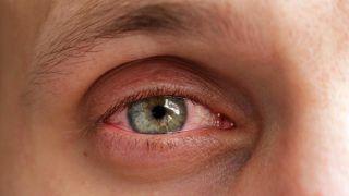 ¿Qué es la conjuntivitis y cuáles son los síntomas? - Conjuntivitis vírica
