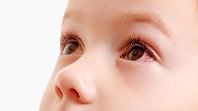 ¿Qué es la conjuntivitis y cuáles son los síntomas? - Conjuntivitis infantil