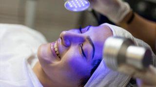 Beneficios del peeling ultrasónico: tratamiento antiarrugas