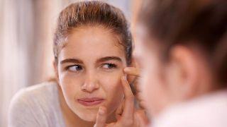 Tipos de granos en la cara y cómo quitarlos - Acné común