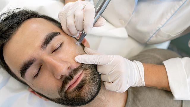 Cómo cuidar la piel tras un microneedling facial