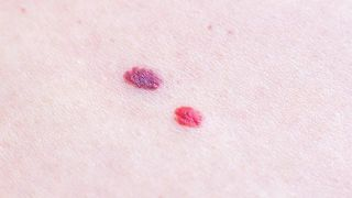 ¿Por qué salen puntos rojos en la piel?