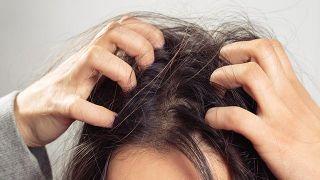 Mujer con cuero cabelludo sensible.